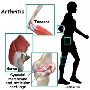 radang sendi lutut